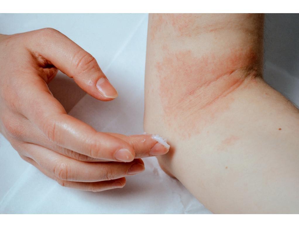 Neurodermitis: oorzaak en behandeling
